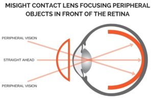 Soft and Hybrid Multifocal Contact Lenses