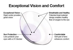 Book an appointment to learn more about hybrid lenses at Mission Eye Care.