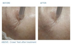 Before and after images of crow's feet after treatment