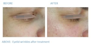 Add image alt tag: Before and after images of eyelid wrinkles after treatment