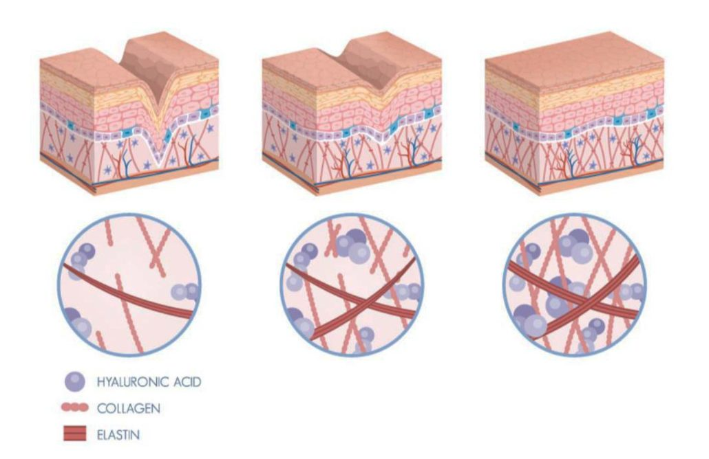 Radio-frequency energy stimulates natural collagen and elastin regeneration in skin.