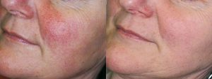 Intense Pulsed Light therapy is a non-procedural option to give the skin a more youthful appearance.